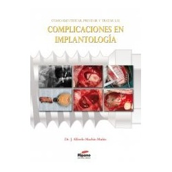 Cómo Identificar, Prevenir y Tratar las Complicaciones en Implantología