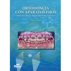 Ortodoncia con aparatos fijos. Biomecánica. Manejo de la fricción. Orthospeed System