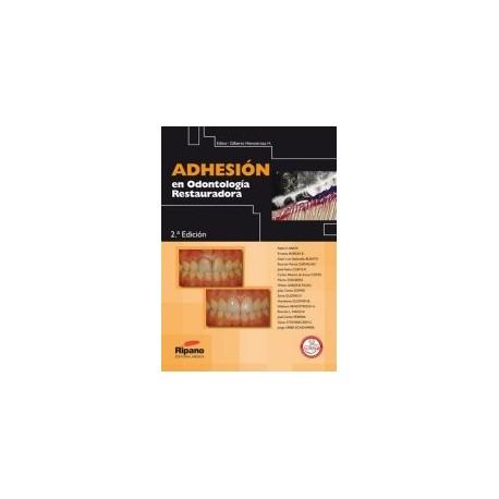 Adhesión en Odontología Restauradora