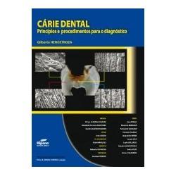 Cárie Dental. Princípios e procedimentos para o diagnóstico