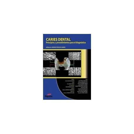 Caries Dental. Principios y Procedimientos para el Diagnóstico