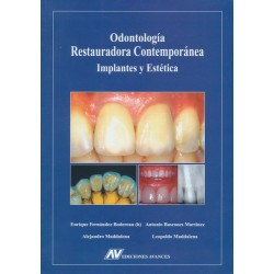 Odontología restauradora contemporánea: Implantes y estética
