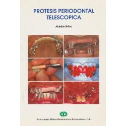 Prótesis periodontal telescopica
