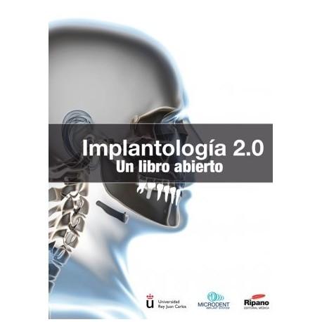 Implantología 2.0 Un libro abierto