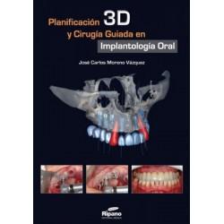Planificación 3D y Cirugía Guiada en Implantología Oral