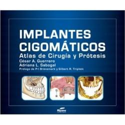 Implantes Cigomáticos Atlas de Cirugía y Prótesis