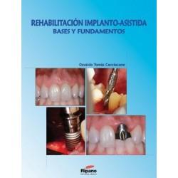 Rehabilitación Implanto-Asistida. Bases y Fundamentos